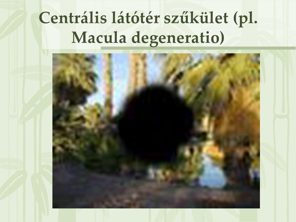 Centrális látótér szűkület (pl. Macula degeneratio)