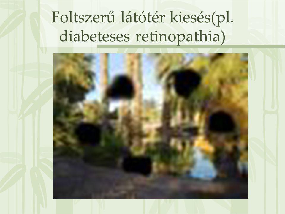 Foltszerű látótér kiesés(pl. diabeteses retinopathia)