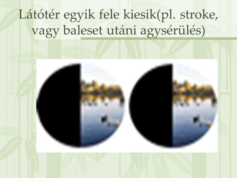 Látótér egyik fele kiesik(pl. stroke, vagy baleset utáni agysérülés)
