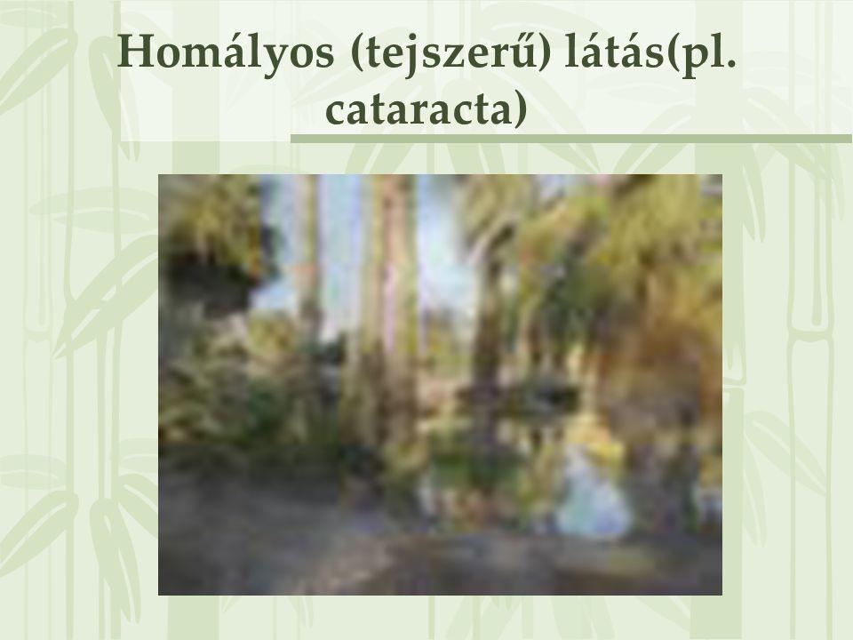Homályos (tejszerű) látás(pl. cataracta)