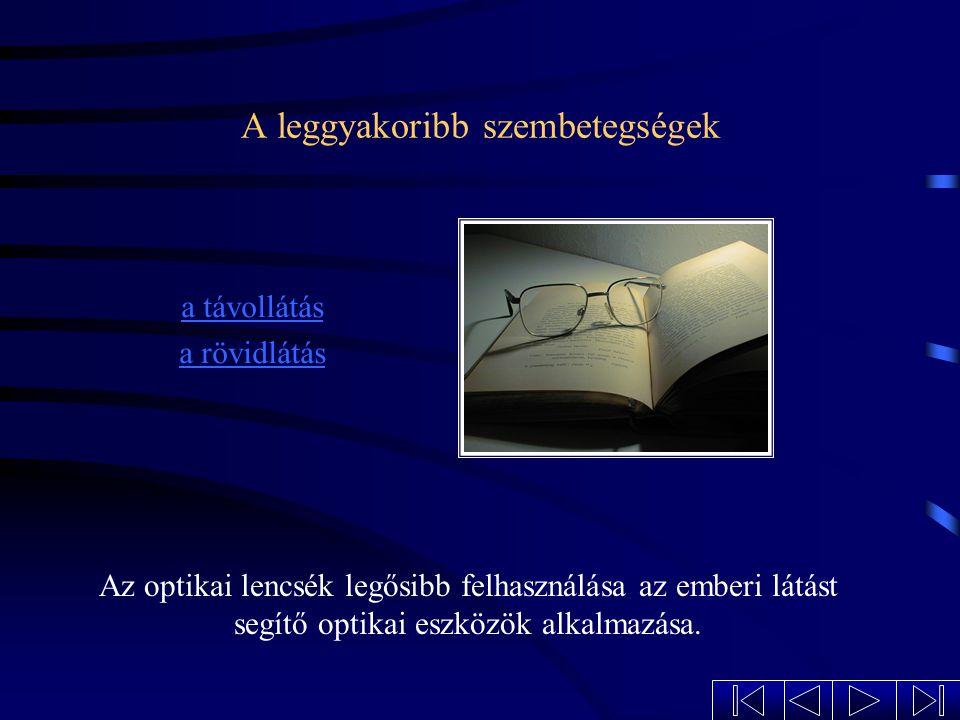 Az emberi szem képalkotása 2FFF O k+t A tárgynak a szemlencse kétszeres fókusztávolságán kívül kell lenni, mert ekkor keletkezik kicsinyített, valódi