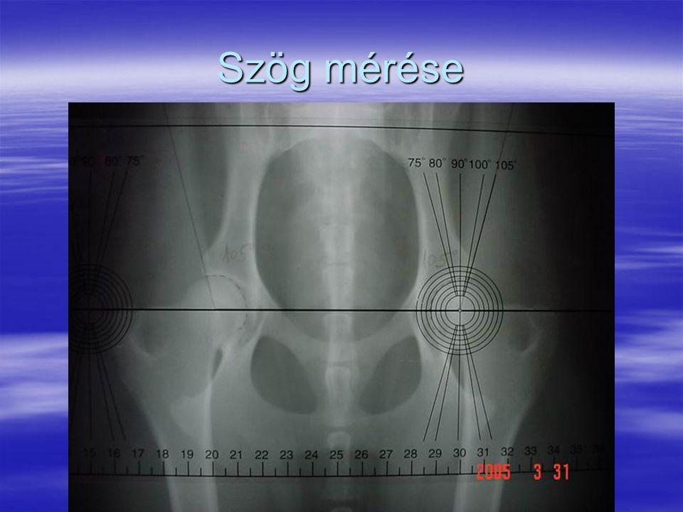 Szög mérése
