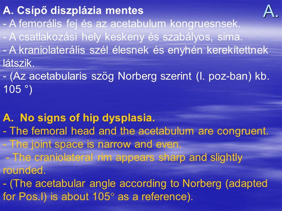 A. Csípő diszplázia mentes - A femorális fej és az acetabulum kongruesnsek. - A csatlakozási hely keskeny és szabályos, sima. - A kraniolaterális szél