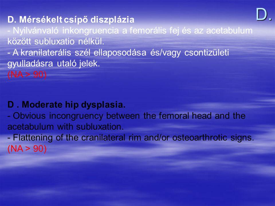 D. Mérsékelt csípő diszplázia - Nyilvánvaló inkongruencia a femorális fej és az acetabulum között subluxatio nélkül. - A kranilaterális szél ellaposod