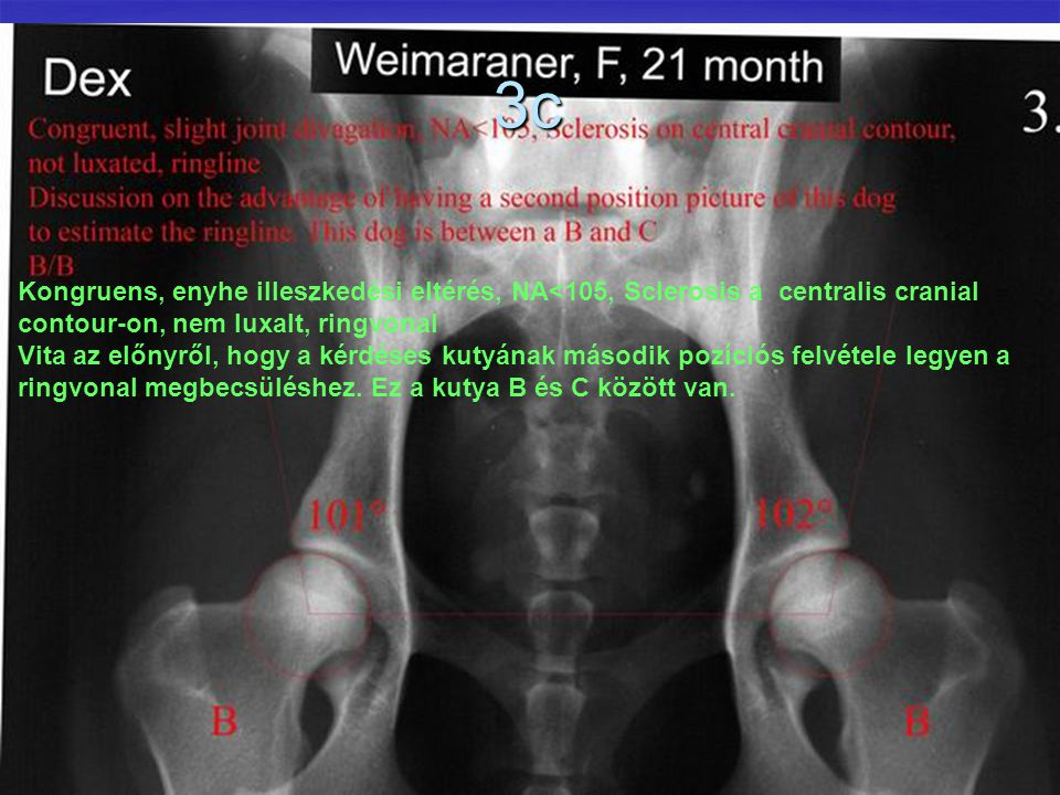 3c Kongruens, enyhe illeszkedési eltérés, NA<105, Sclerosis a centralis cranial contour-on, nem luxalt, ringvonal Vita az előnyről, hogy a kérdéses ku