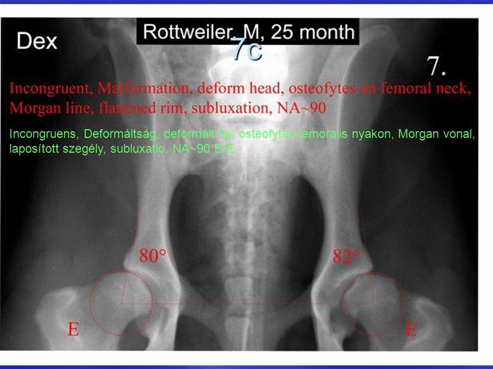 7c Incongruens, Deformáltság, deformált fej, osteofytes femoralis nyakon, Morgan vonal, laposított szegély, subluxatio, NA~90 E/E