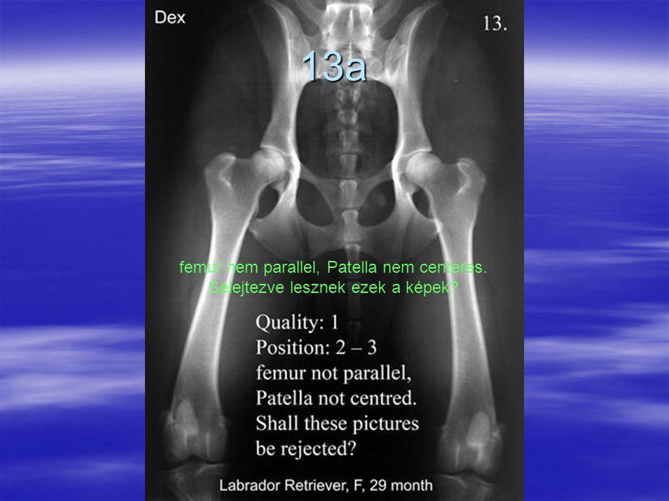 13a femur nem parallel, Patella nem centeres. Selejtezve lesznek ezek a képek?