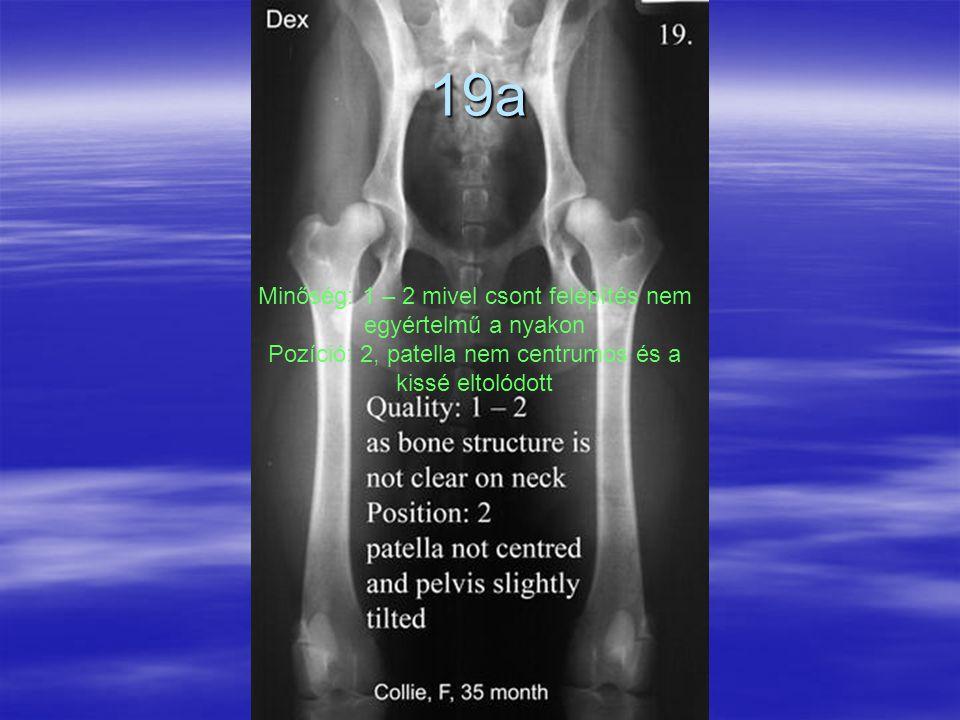 19a Minőség: 1 – 2 mivel csont felépítés nem egyértelmű a nyakon Pozíció: 2, patella nem centrumos és a kissé eltolódott