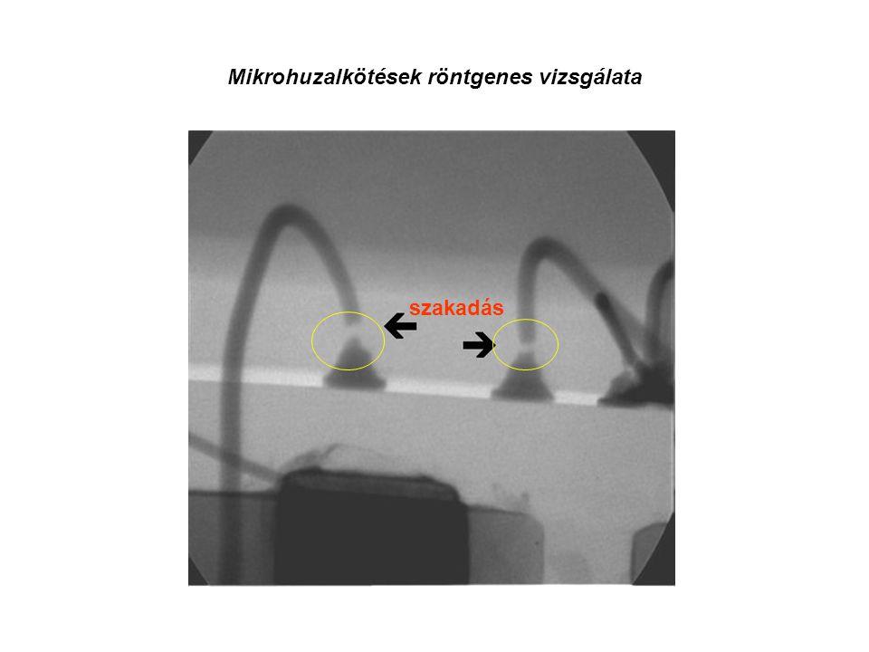 Mikrohuzalkötések röntgenes vizsgálata szakadás
