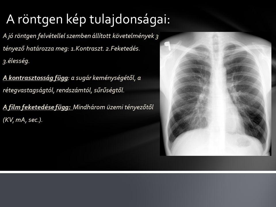 A röntgen kép tulajdonságai: A jó röntgen felvétellel szemben állított követelmények 3 tényező határozza meg: 1.Kontraszt. 2.Feketedés. 3.élesség. A k