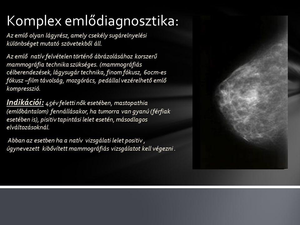 Komplex emlődiagnosztika: Az emlő olyan lágyrész, amely csekély sugárelnyelési különbséget mutató szövetekből áll. Az emlő natív felvételen történő áb