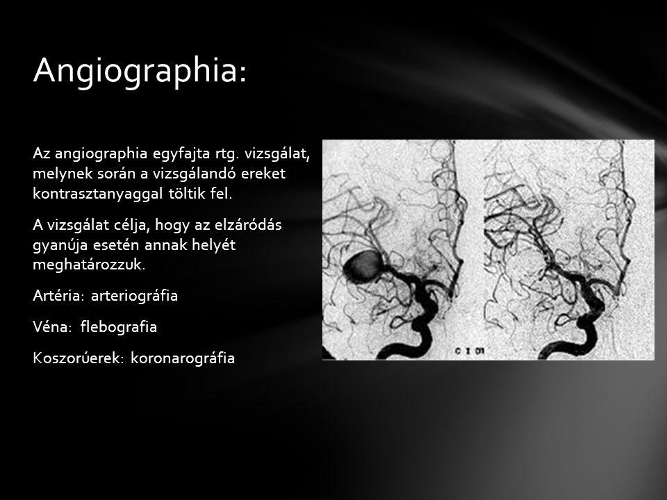 Az angiographia egyfajta rtg. vizsgálat, melynek során a vizsgálandó ereket kontrasztanyaggal töltik fel. A vizsgálat célja, hogy az elzáródás gyanúja