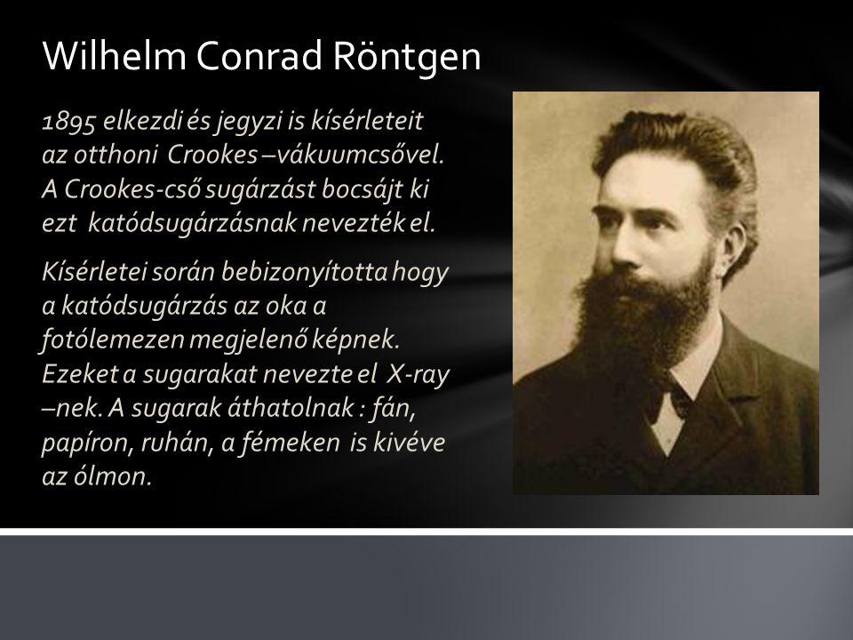 Wilhelm Conrad Röntgen 1895 elkezdi és jegyzi is kísérleteit az otthoni Crookes –vákuumcsővel.