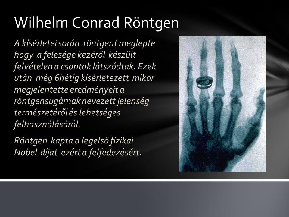 Wilhelm Conrad Röntgen A kísérletei során röntgent meglepte hogy a felesége kezéről készült felvételen a csontok látszódtak.