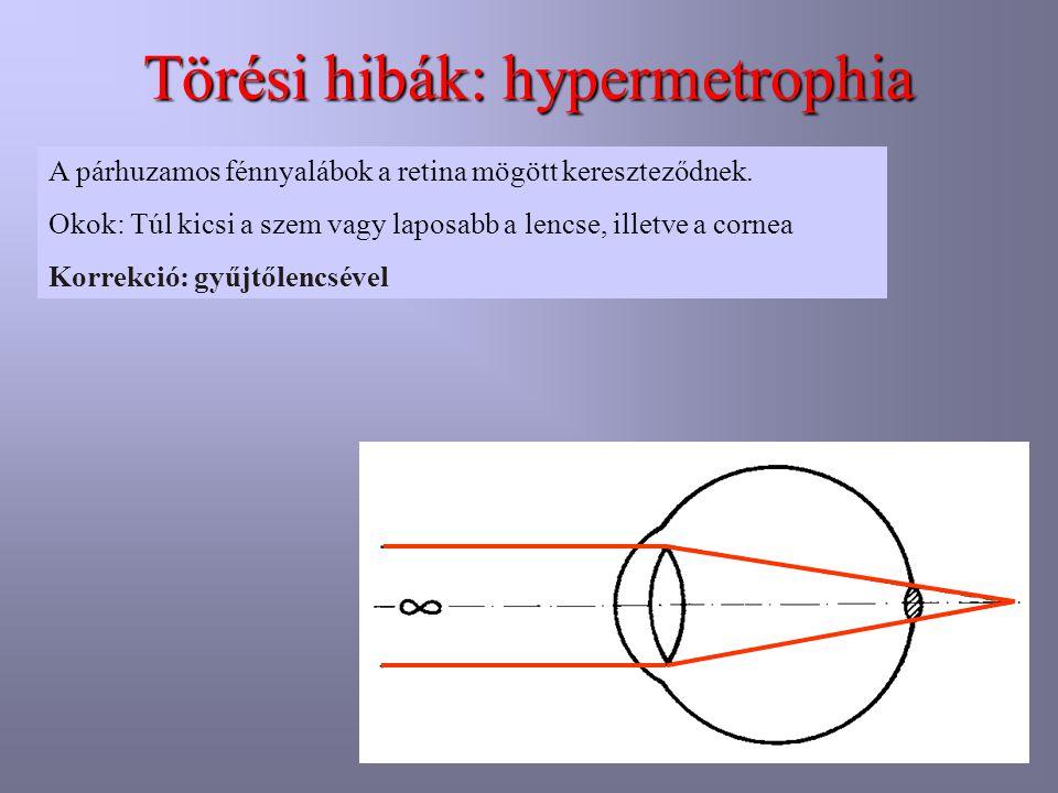 Törési hibák: hypermetrophia A párhuzamos fénnyalábok a retina mögött kereszteződnek. Okok: Túl kicsi a szem vagy laposabb a lencse, illetve a cornea