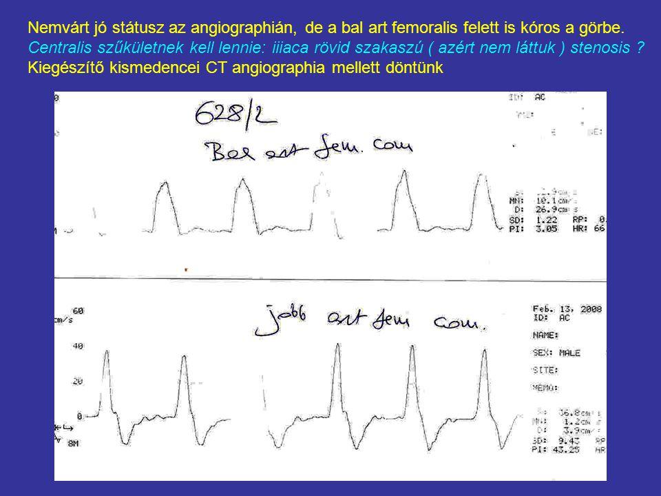 Nemvárt jó státusz az angiographián, de a bal art femoralis felett is kóros a görbe. Centralis szűkületnek kell lennie: iiiaca rövid szakaszú ( azért