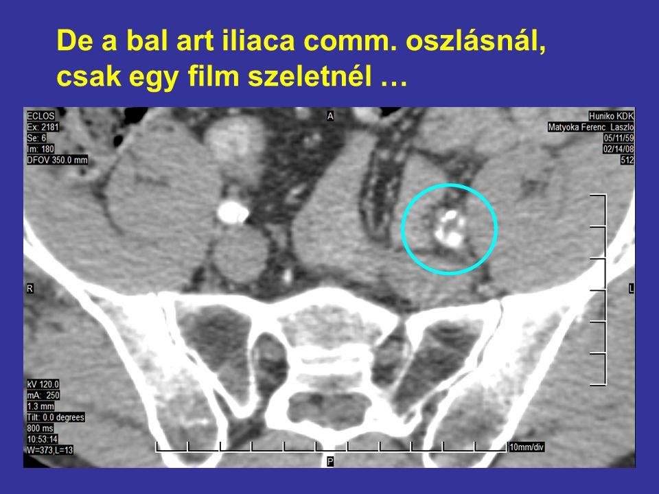 De a bal art iliaca comm. oszlásnál, csak egy film szeletnél …