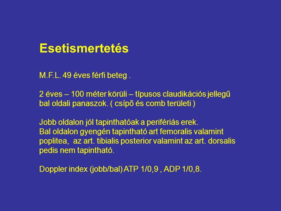 Esetismertetés M.F.L. 49 éves férfi beteg. 2 éves – 100 méter körüli – típusos claudikációs jellegű bal oldali panaszok. ( csípő és comb területi ) Jo