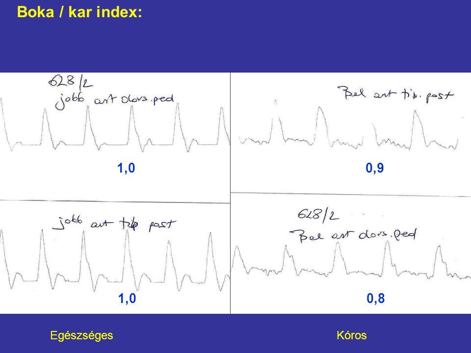 Egészséges Kóros Boka / kar index: 1,0 0,8 1,0 0,9