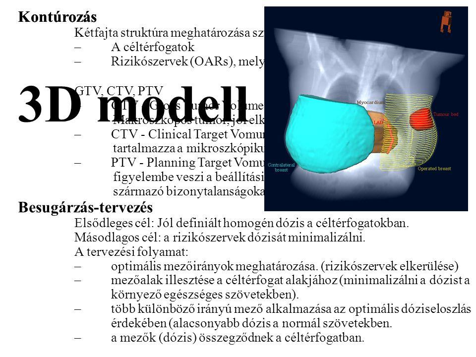 Kontúrozás Kétfajta struktúra meghatározása szükséges: –A céltérfogatok –Rizikószervek (OARs), melyek védendőek. GTV, CTV, PTV –GTV - Gross Tumor Volu