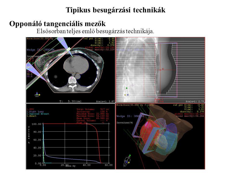 Tipikus besugárzási technikák 4-mezős BOX-technika Többnyire prosztata, rectum, nőgyógyászati daganatok terápiája során. Opponáló laterális mezők Főké