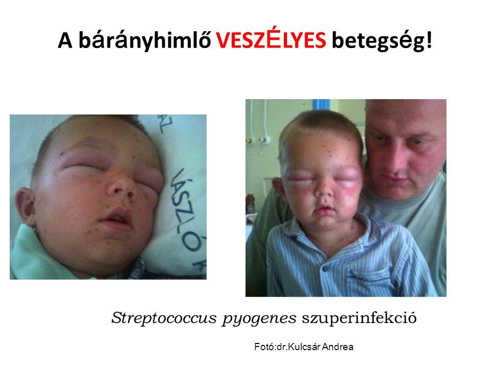 A b á r á nyhimlő VESZ É LYES betegs é g.