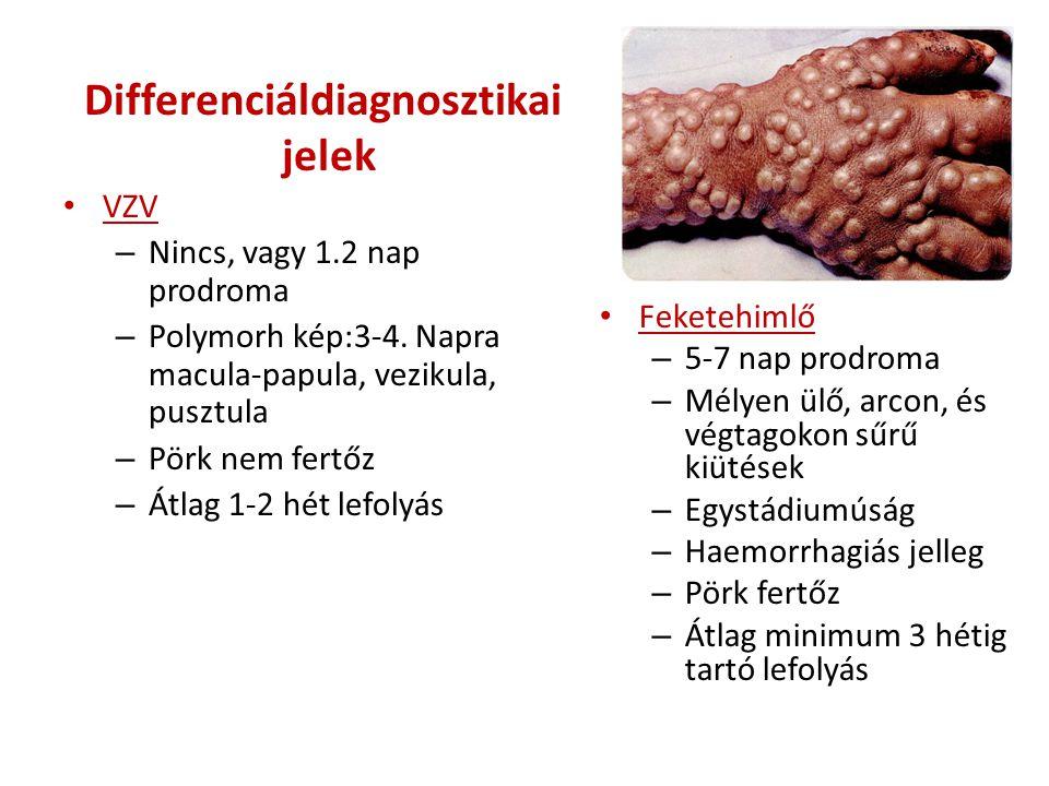 Differenciáldiagnosztikai jelek • VZV – Nincs, vagy 1.2 nap prodroma – Polymorh kép:3-4. Napra macula-papula, vezikula, pusztula – Pörk nem fertőz – Á