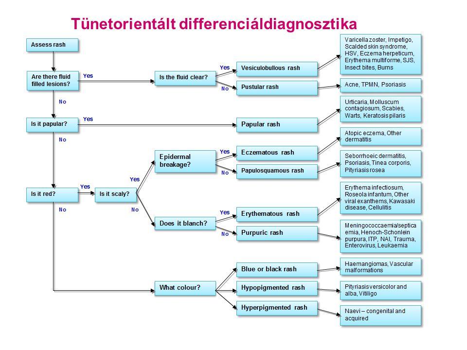 """Megalerythaema • nincs jó magyar neve • (H)PV B19 • a proerythrocytákban szaporodik– haemolyzis • nincs biztos incubáció - 14 nap esettől esetig • igen fertőző >99% • csecsemők, iskolások • """"slapped face csak a kb."""