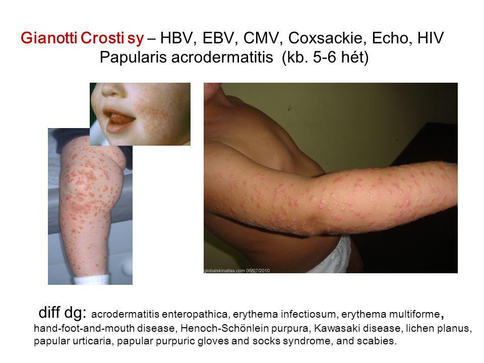 Gianotti Crosti sy – HBV, EBV, CMV, Coxsackie, Echo, HIV Papularis acrodermatitis (kb. 5-6 hét) diff dg: acrodermatitis enteropathica, erythema infect