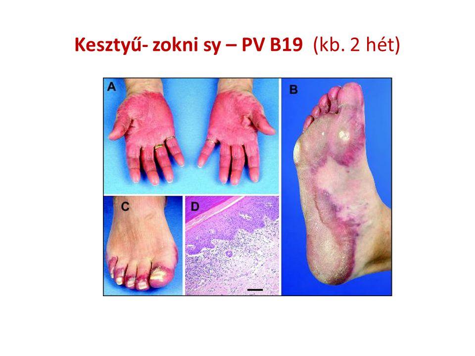 Kesztyű- zokni sy – PV B19 (kb. 2 hét)