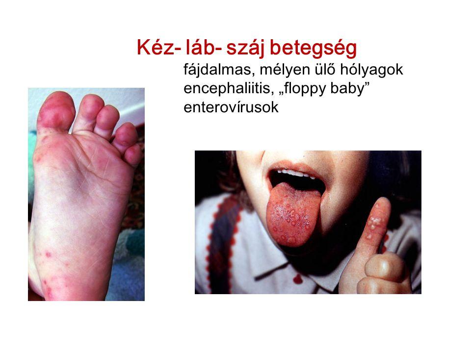 """Kéz- láb- száj betegség fájdalmas, mélyen ülő hólyagok encephaliitis, """"floppy baby enterovírusok"""