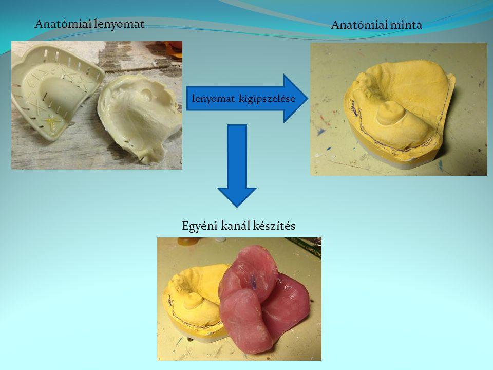 Anatómiai lenyomat lenyomat kigipszelése Anatómiai minta Egyéni kanál készítés