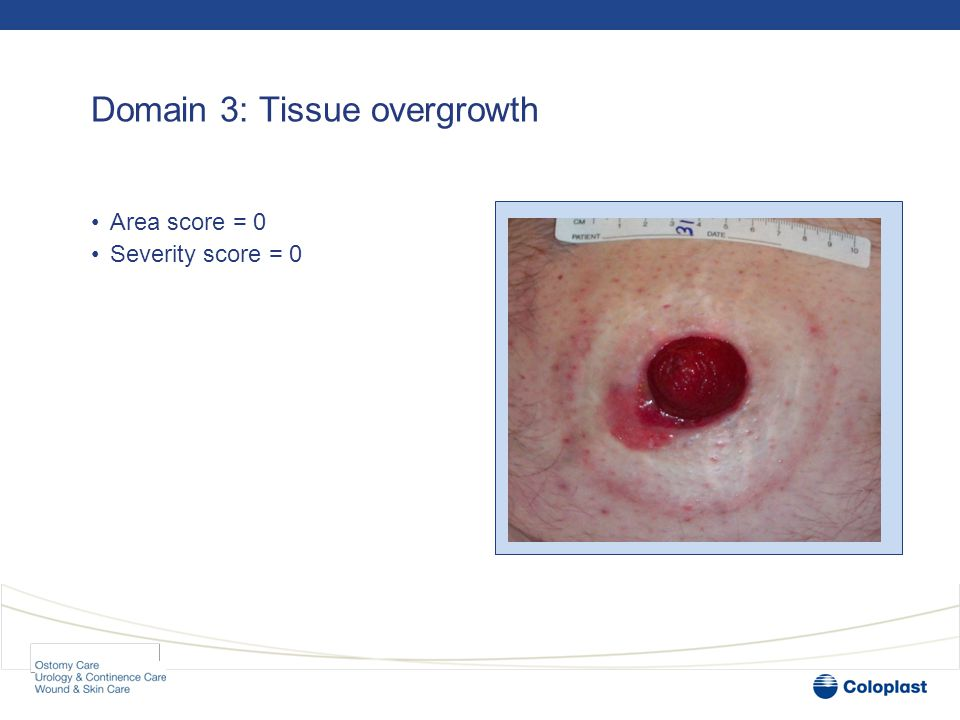 Domain 3: Tissue overgrowth •Area score = 0 •Severity score = 0