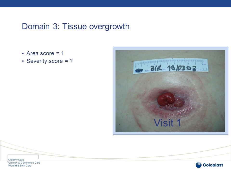 Domain 3: Tissue overgrowth •Area score = 1 •Severity score = Visit 1