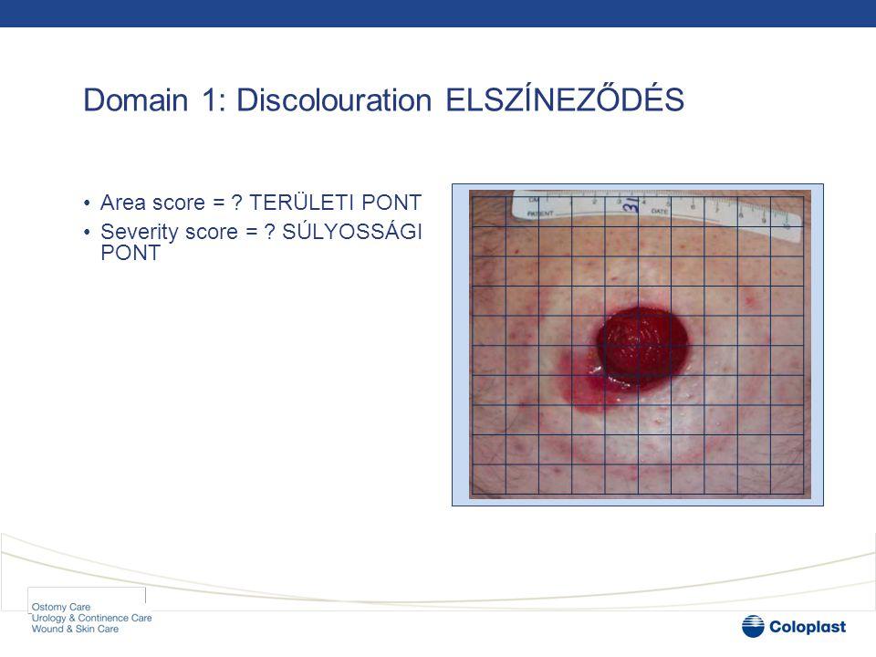 Domain 1: Discolouration ELSZÍNEZŐDÉS •Area score = .