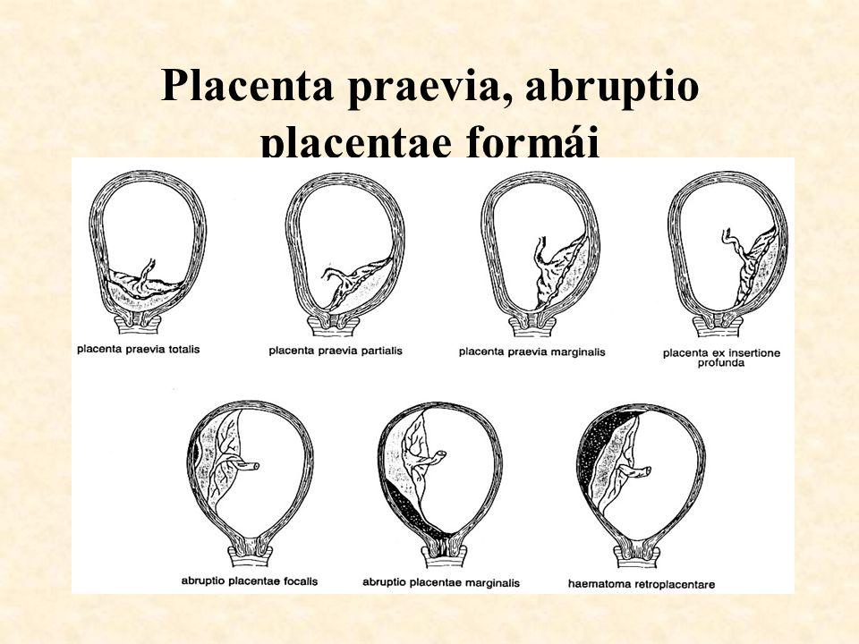 Placenta praevia, abruptio placentae formái
