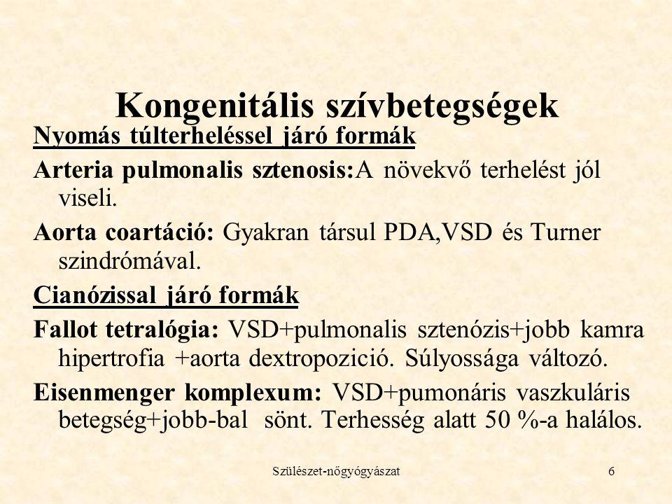 Szülészet-nőgyógyászat6 Kongenitális szívbetegségek Nyomás túlterheléssel járó formák Arteria pulmonalis sztenosis:A növekvő terhelést jól viseli.
