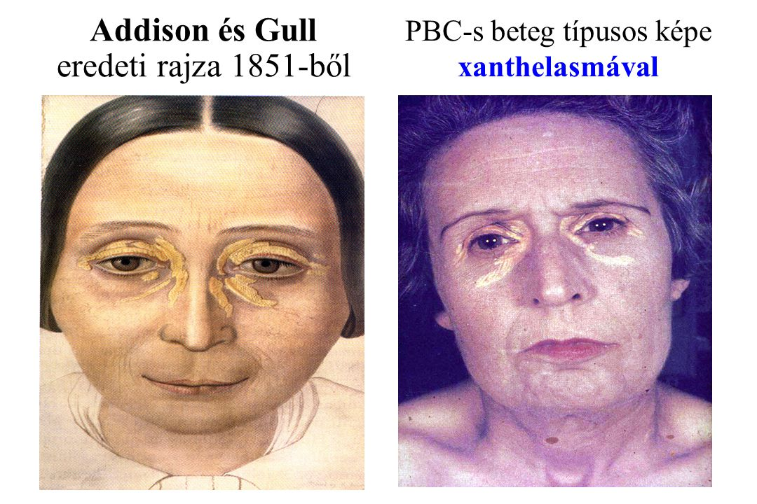 Addison és Gull eredeti rajza 1851-ből PBC-s beteg típusos képe xanthelasmával
