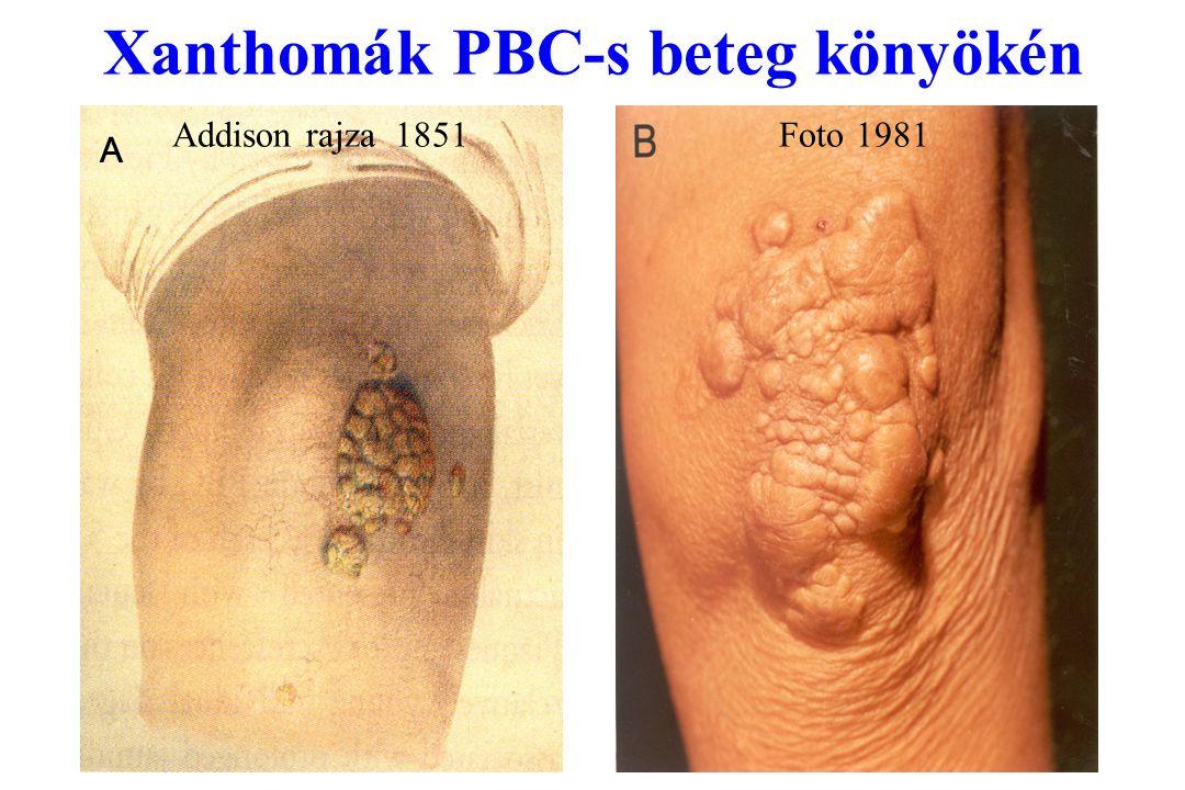 Xanthomák PBC-s beteg könyökén Addison rajza 1851 Foto 1981 A