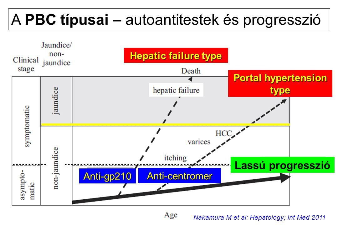 A PBC típusai – autoantitestek és progresszió Anti-gp210 Anti-centromer Hepatic failure type Portal hypertension type Lassú progresszió Nakamura M et