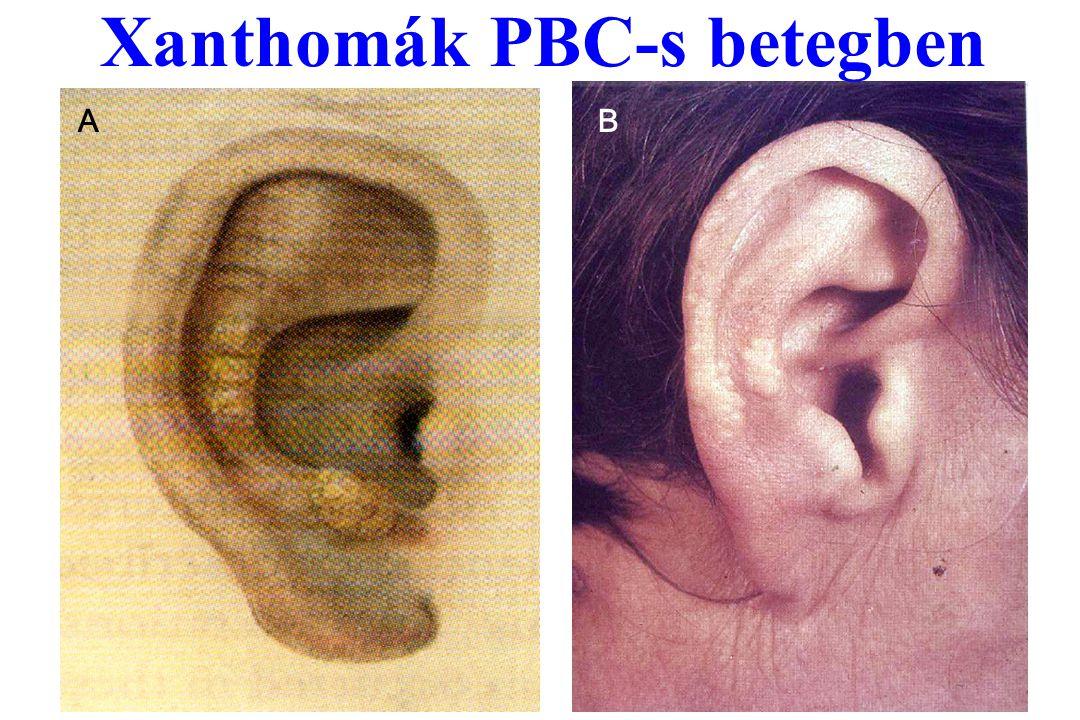 Xanthomák PBC-s betegben AB