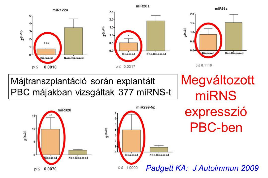 Megváltozott miRNS expresszió PBC-ben Padgett KA: J Autoimmun 2009 Májtranszplantáció során explantált PBC májakban vizsgáltak 377 miRNS-t