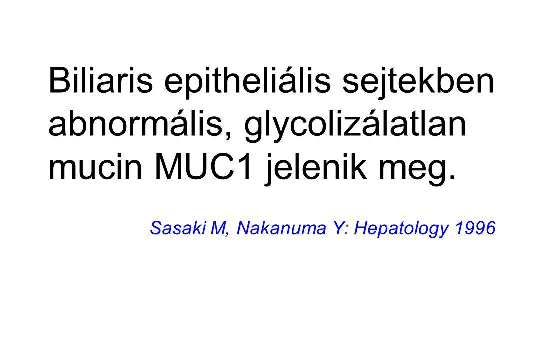 Biliaris epitheliális sejtekben abnormális, glycolizálatlan mucin MUC1 jelenik meg. Sasaki M, Nakanuma Y: Hepatology 1996