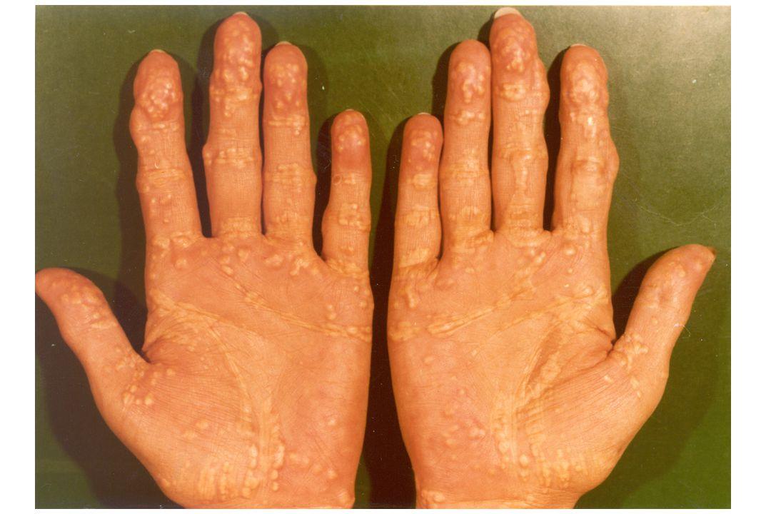 KIVÁLTÓ FAKTOROK Xenobiotikumok halogenizált szerves anyagok 2-nonanoic sav – körömlakk Fertőző ágensek E Coli Novosphingobium aromaticivorans human betaretrovírus – nem igazolódott