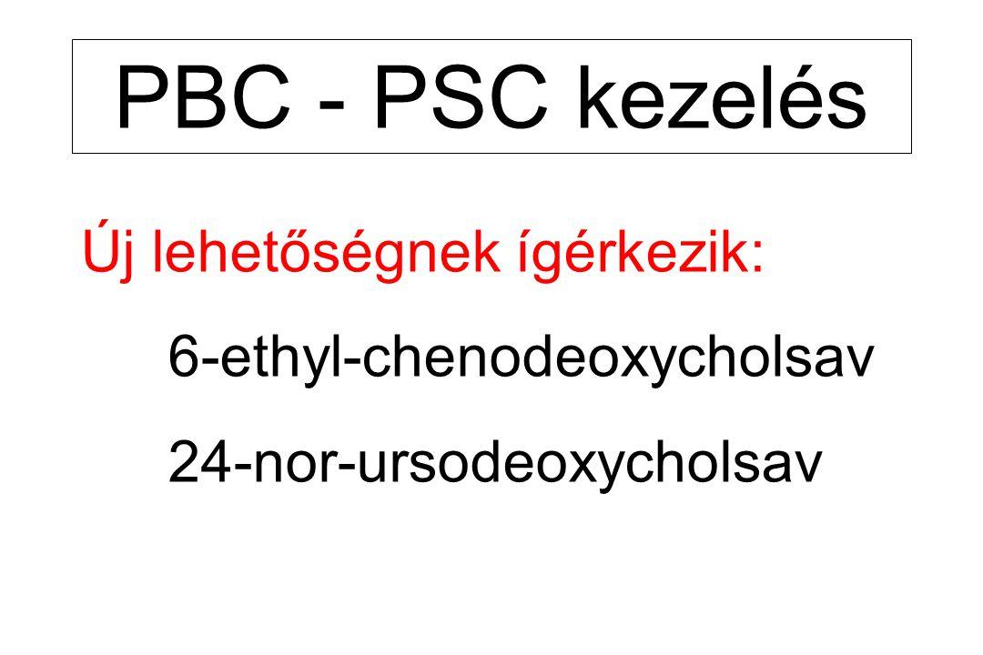 PBC - PSC kezelés Új lehetőségnek ígérkezik: 6-ethyl-chenodeoxycholsav 24-nor-ursodeoxycholsav