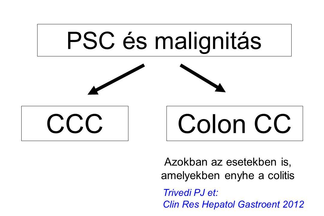 PSC és malignitás CCCColon CC Azokban az esetekben is, amelyekben enyhe a colitis Trivedi PJ et: Clin Res Hepatol Gastroent 2012