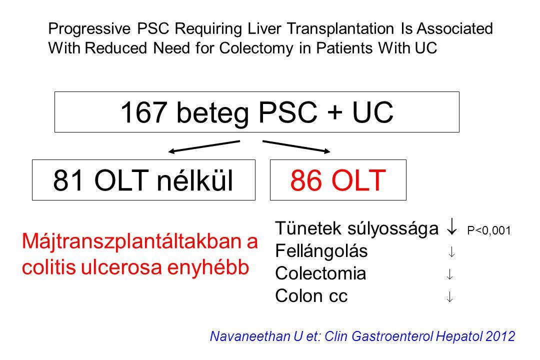 167 beteg PSC + UC 86 OLT81 OLT nélkül Tünetek súlyossága  P<0,001 Fellángolás  Colectomia  Colon cc  Navaneethan U et: Clin Gastroenterol Hepatol