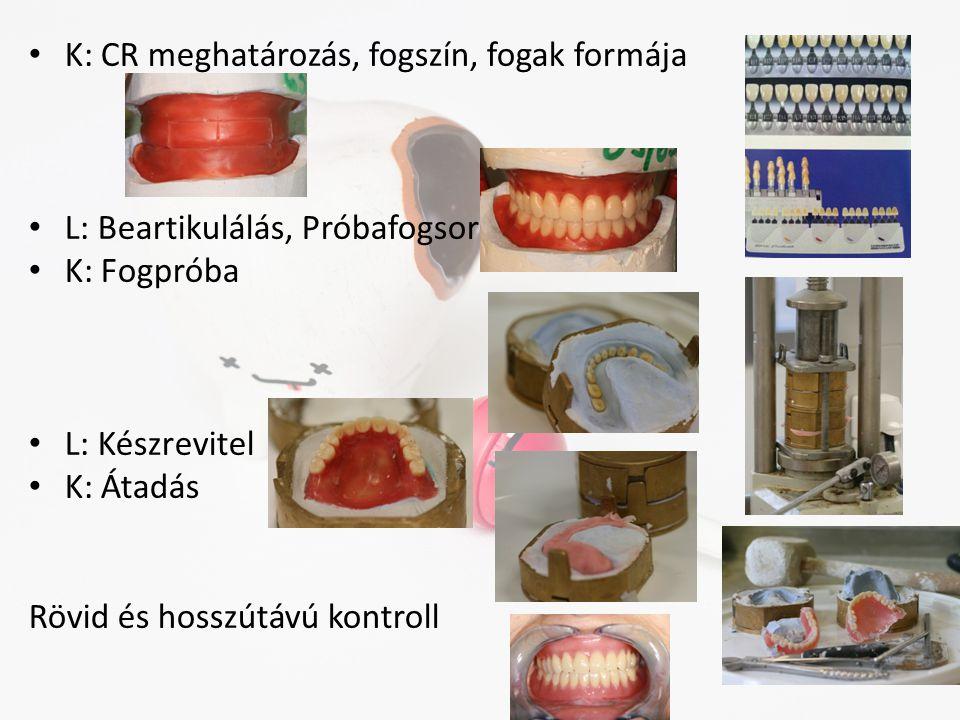 • K: CR meghatározás, fogszín, fogak formája • L: Beartikulálás, Próbafogsor • K: Fogpróba • L: Készrevitel • K: Átadás Rövid és hosszútávú kontroll