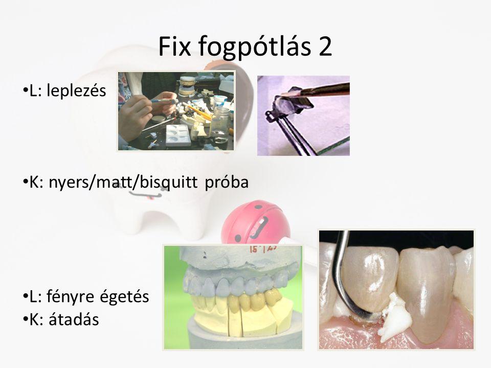 Fix fogpótlás 2 • L: leplezés • K: nyers/matt/bisquitt próba • L: fényre égetés • K: átadás