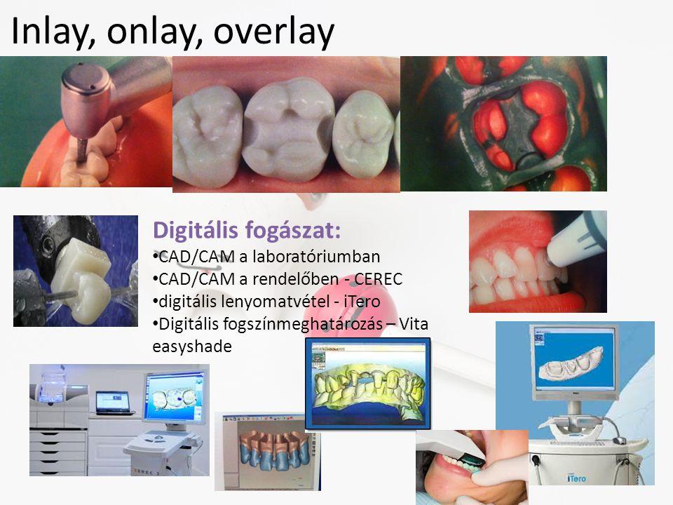 Inlay, onlay, overlay Digitális fogászat: • CAD/CAM a laboratóriumban • CAD/CAM a rendelőben - CEREC • digitális lenyomatvétel - iTero • Digitális fog